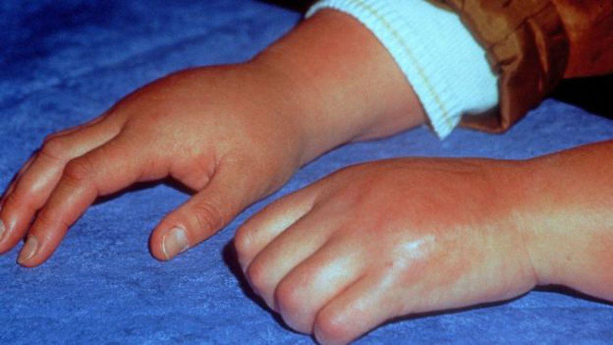 síndrome de dolor regional complejo epidemiología de diabetes